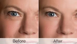 wrinkle treatment london